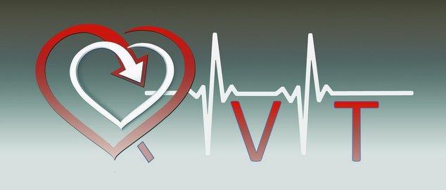 Novéquilibres : La QVT : Quoi de neuf, Docteur ? - laqvt.fr QVT Qualité de Vie au Travail